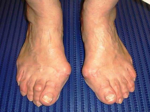 Surgery is often a recommended cure for bunions. [Photo from sportsfeet.com.au]