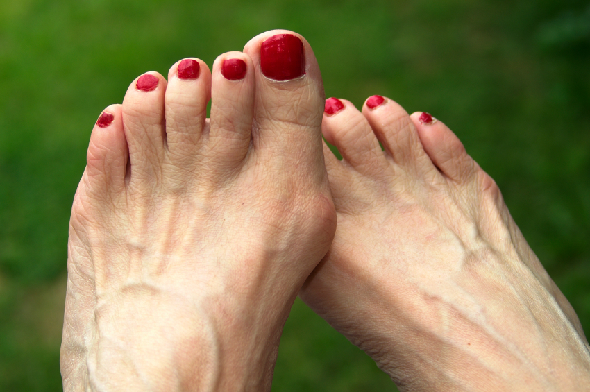 How do you ease your bunions? [Photo taken from americanfoot.com]