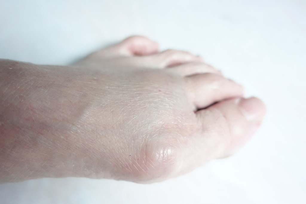 My mother's bunion is a Stage 1 bunion, according to Png.