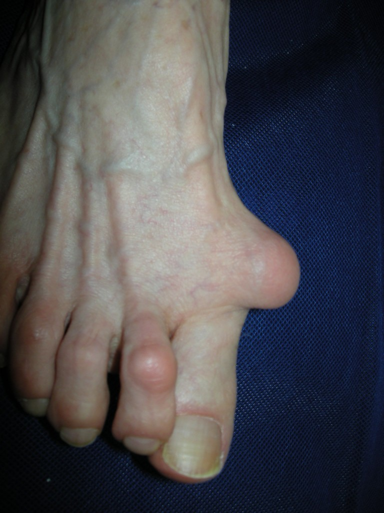 A more painful looking bunion. [Photo taken from www.alignmentrescue.com]