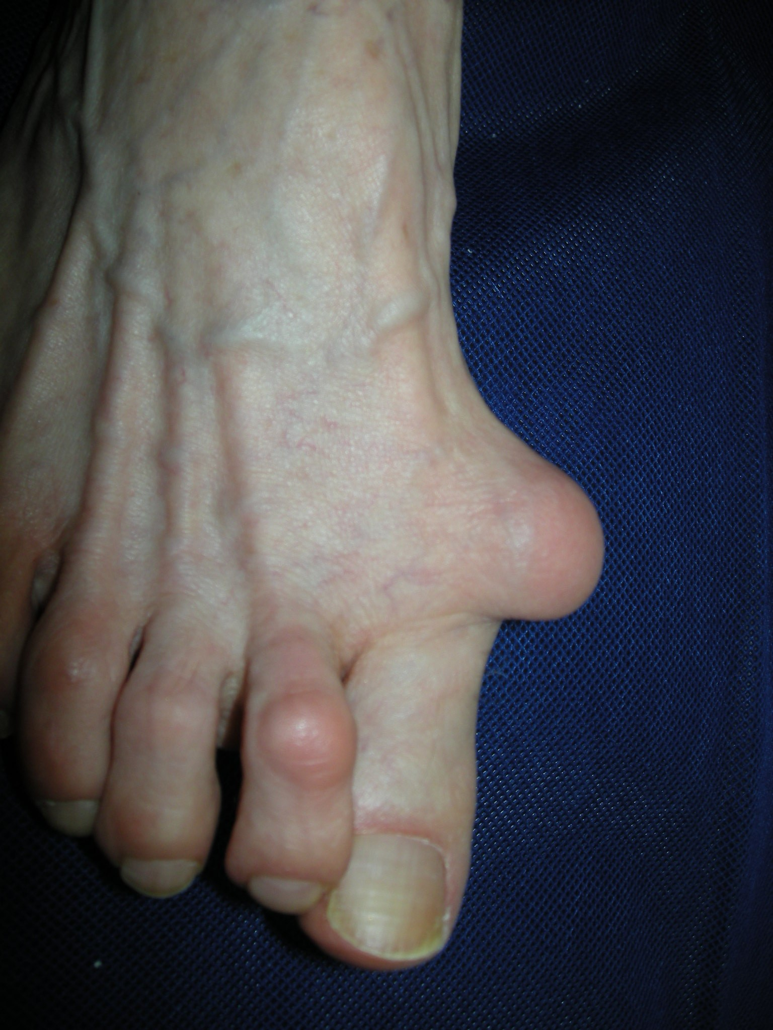Why Could Your Bunions Reoccur After Foot Surgery