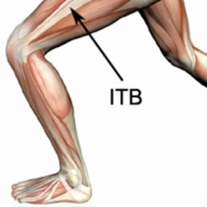 ITB band syndrome injury.