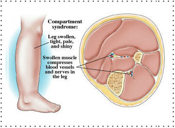 The compartments in the leg. (Image from runforefoot.com)